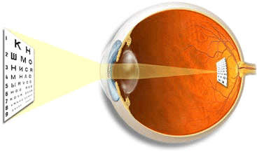 Тренинг для глаз упражнения для улучшения зрения